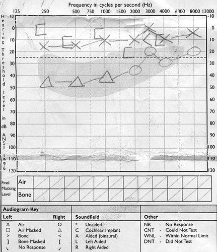 audiogram-before